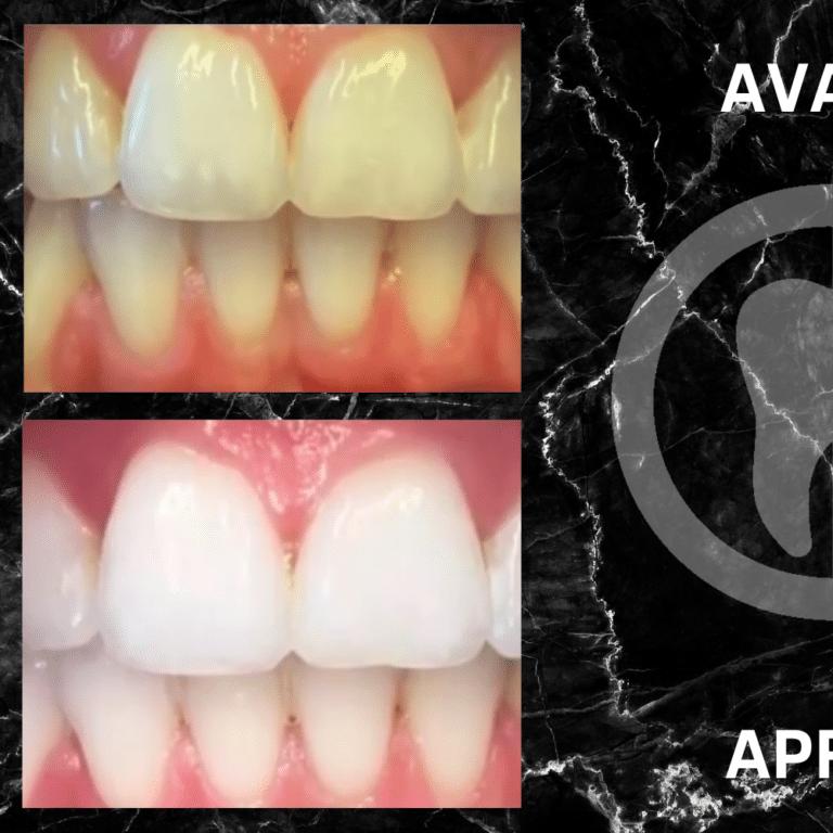 Réalisation de blanchiment dentaire avant après