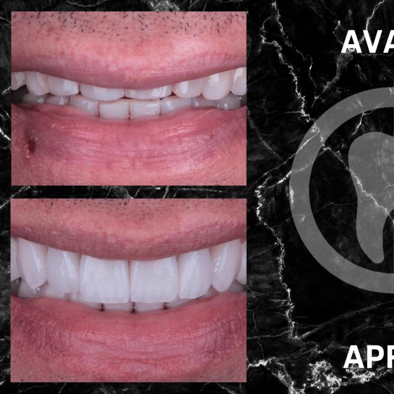 Réalisation de facettes dentaires avant après