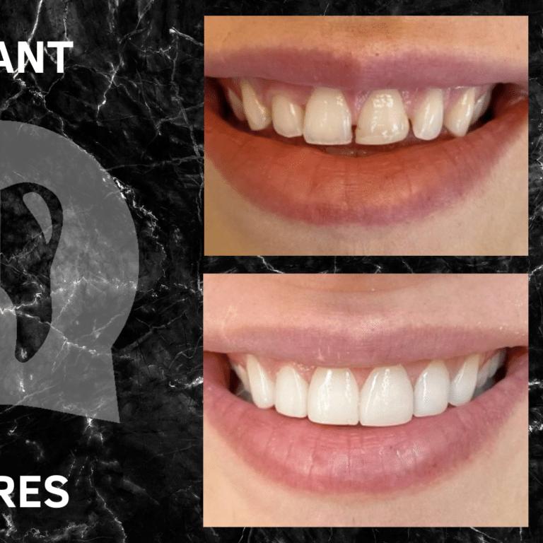 Facettes dentaire avant après