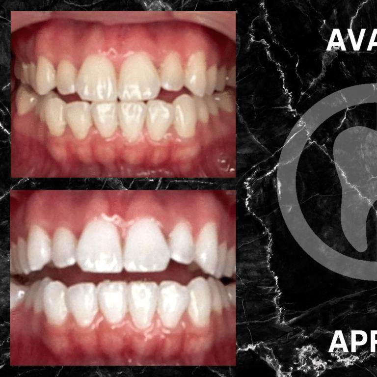Cette photo illustre un avant/après d'un blanchiment dentaire